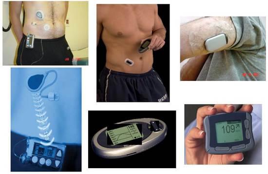 40.000 patiënten krijgen sensor voor diabetes terugbetaald